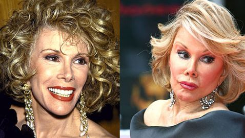 Joan Rivers Has More Work Done