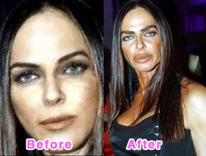 12 Lessons Learned from Celebrity Cosmetic Surgery Nightmares