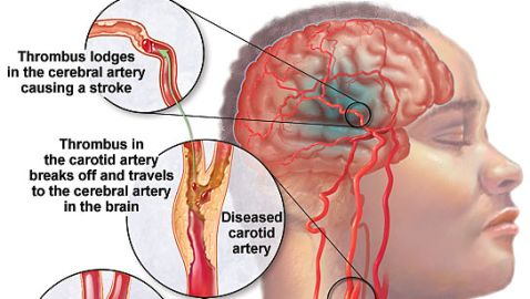 New Sign of Stroke Has Been Identified