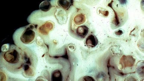 Tapeworms in Brain Cause Neurocysticercosis