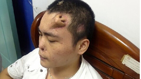Doctors Regrow Man's Nose…on His Forehead