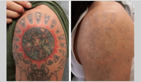Woman Cuts off Tattoo and Sends Skin to Her Ex-Boyfriend