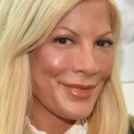 Tori Spelling and Benihana Settle Personal Injury Lawsuit