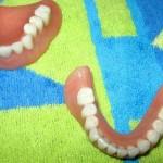 Dentures Solve Mystery of Stolen Truck