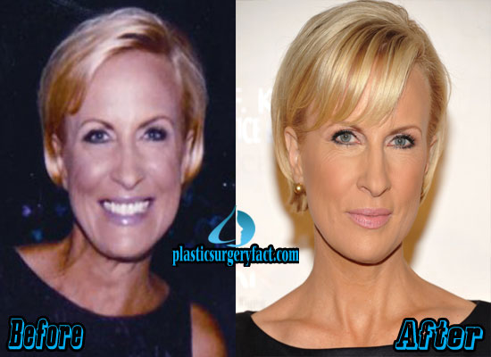 Mika Brzezinski plastic surgery before and after